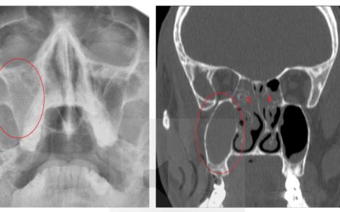 Визуализация острого гайморита на рентгене и КТ