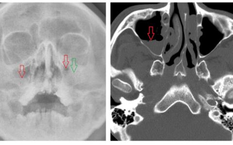 Экссудативный гайморит на рентгене и КТ в сравнении