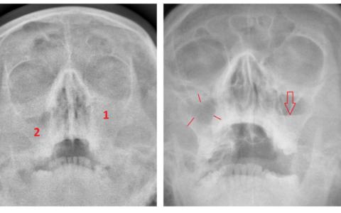 Жидкость в верхнечелюстной пазухе на рентгенограмме