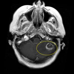 Признаки опухоли гемисферы мозжечка на КТ мозга