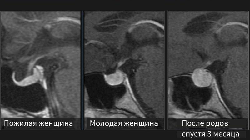 Сравнение нормы гипофиза у пациентов разных возрастов