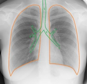 Трахея и бронхи на рентгенограмме