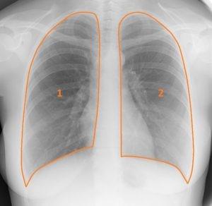 Контуры легочных полей на рентгенограмме