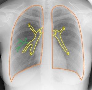 Легочные артерии и вены на рентгенограмме