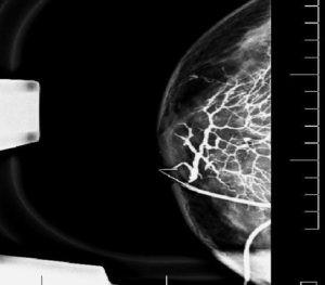 Дуктограмма - исследование протоков молочной железы