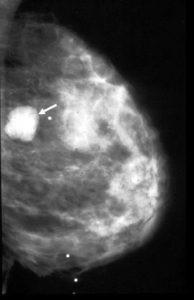 Доброкачественное образование молочной железы фиброаденома