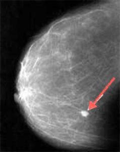 Так выглядит кальцификация на снимке маммографии