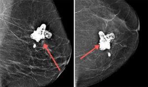 Липогранулему можно спутать с раковой опухолью