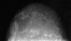 Молочная железа в норме у возрастной пациентки
