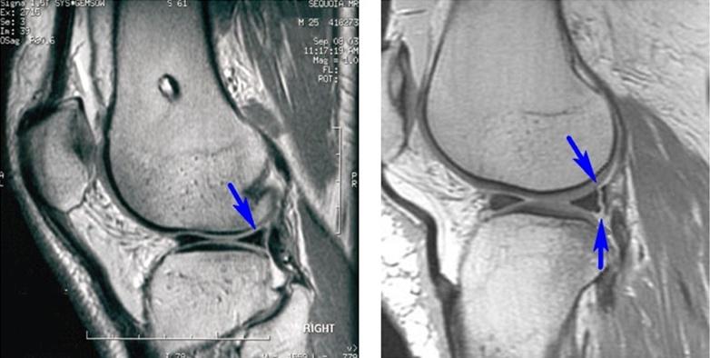 Мрт мениска коленного сустава