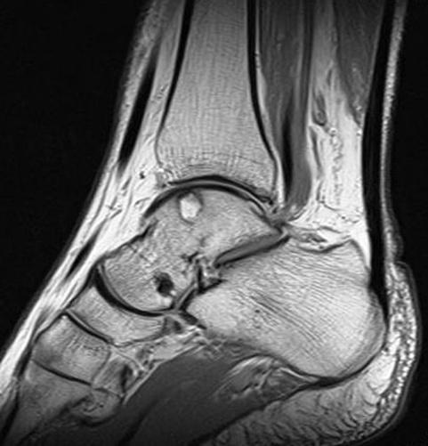 когда садишься болит колено