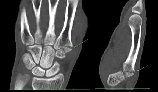 Мрт лучезапястного сустава цена наращивание хряща в суставах после перелома
