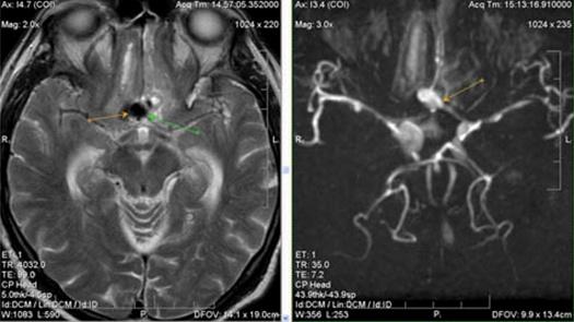 Диагностика аневризмы головного мозга мрт