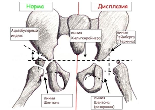 деформация суставов пальцев рук