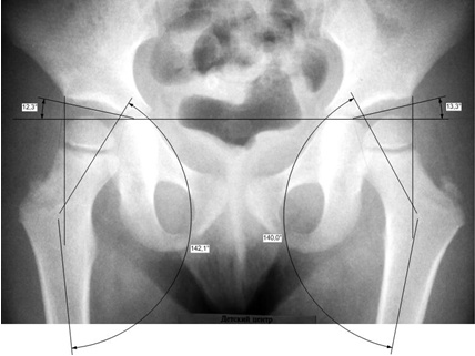 Вывих тазобедренного сустава у ребенка 3 лет регенерация связок коленного сустава