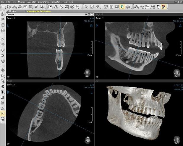 конусно лучевая компьютерная томография пазух носа