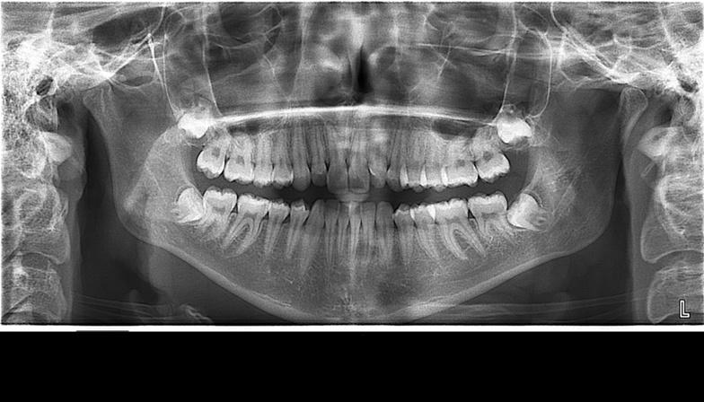 Что показывает кт зубов