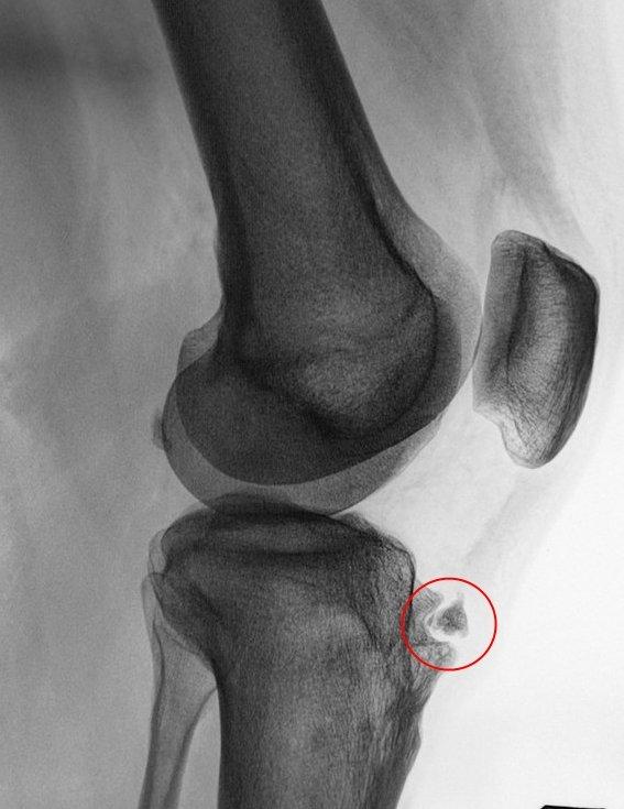 Остеохондроз большеберцовой кости деформирующий : Сайт практического рентгенолога