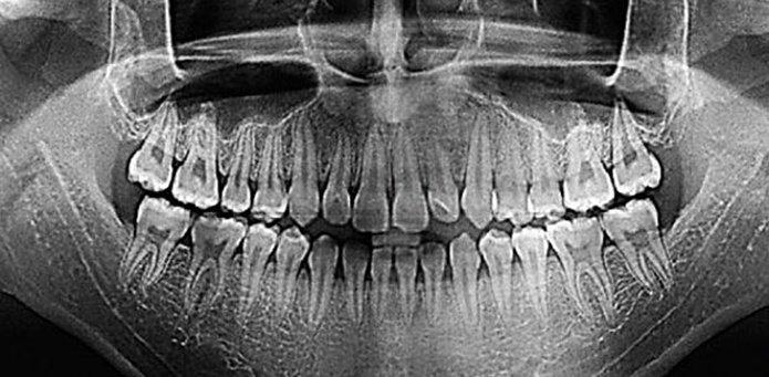 Узи и рентген чем отличаются челюсти