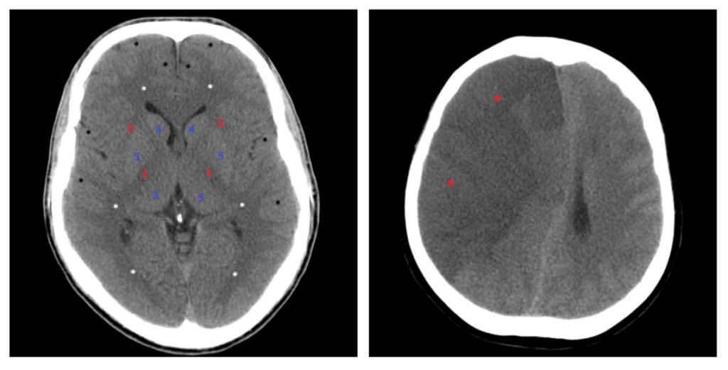 Ширина боковых желудочков мозга норма у взрослых