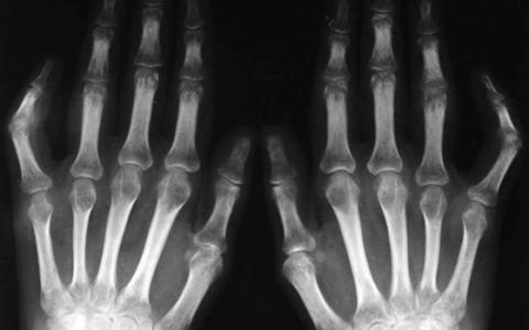 Рентгенография суставов при ревматическом полиартрите выявляет климакс, боль в суставах