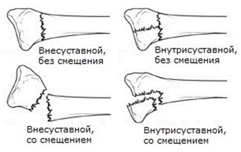 Рентген при переломе шейки бедренной кости