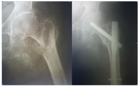Костный мозоль после перелома шейки бедра владивосток пансионат для инвалидов