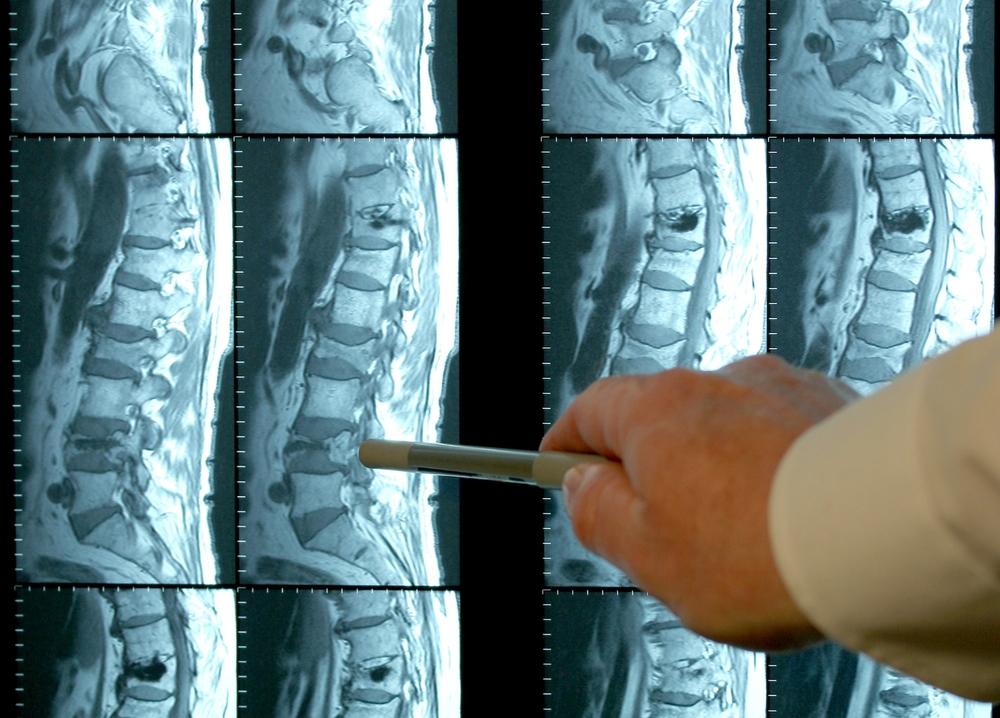 Что делать при защемлении нерва в позвоночник