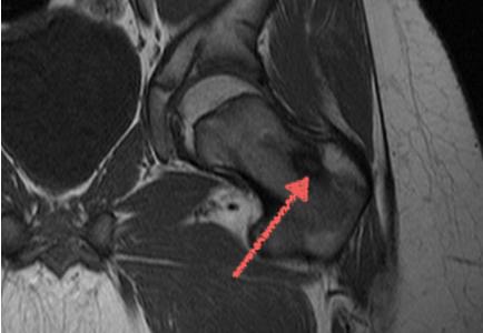 Мскт или мрт тазобедренного сустава