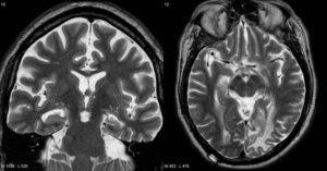 Если на мрт нет очага то это не эпилепсия