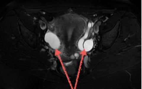 МРТ яичников и матки что показывает при раке и кисте. Второе мнение