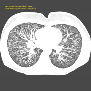 Мскт органов грудной клетки расшифровка