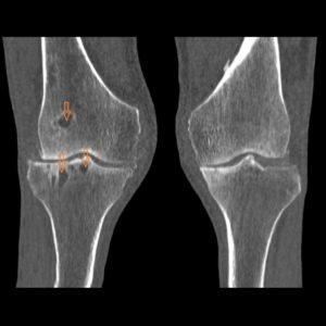 Артроз коленных 3 стадии рентгеновские снимки