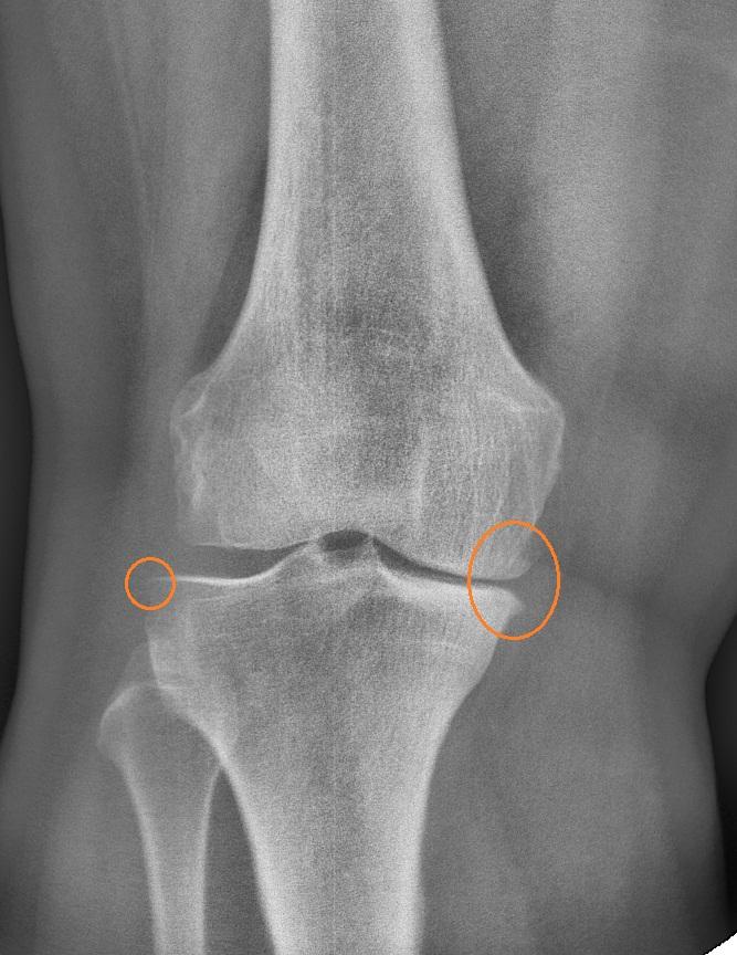 заострение межмыщелковых возвышений коленного сустава это