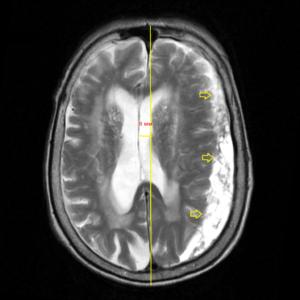 Заключение мрт головного мозга здорового человека