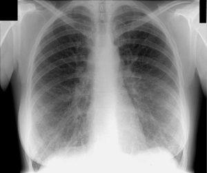 Что безопаснее рентген или флюорография легких