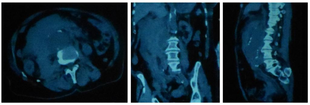 Компьютерная томография аорты с контрастированием