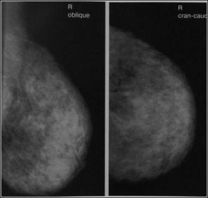 У маммолога фото 30