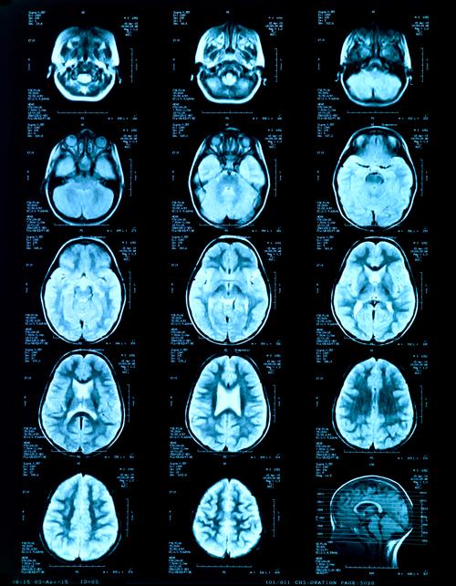 Компьютерная томография с контрастированием головного мозга