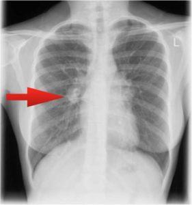 Соски на рентгенограммах