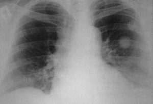 Форум по рентгену легких