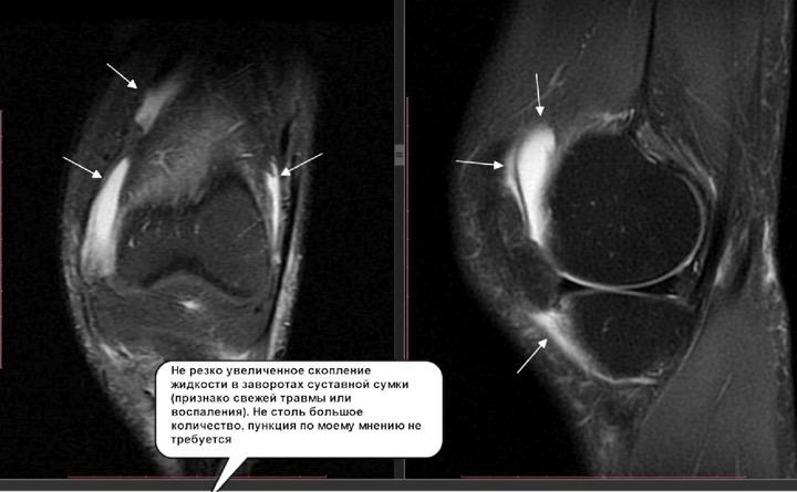 Мрт-картина жидкость коленного сустава потеют ноги после замены суставов