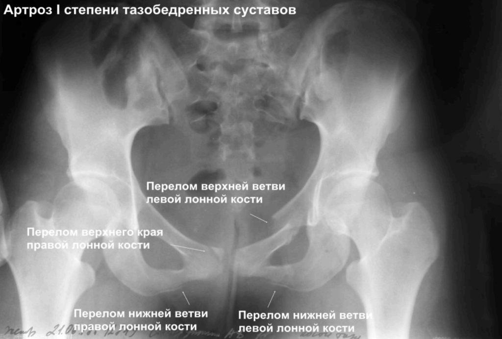 Примеры описания снимков суставов компрессы при артрозе коленного сустава отзывы